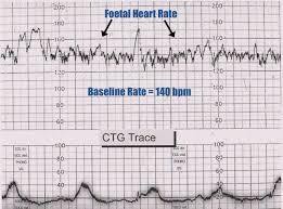ctg registrering af hjerteslag