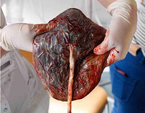 placenta - moderkage efter fødslen