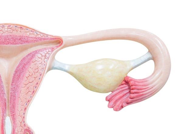 Æggestokken i midten. Her ses også æggelederen (th) og livmoderen (tv)
