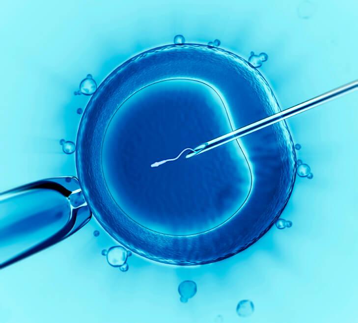 ICSI - ægcelle befrugtes kunstigt af en sædcelle