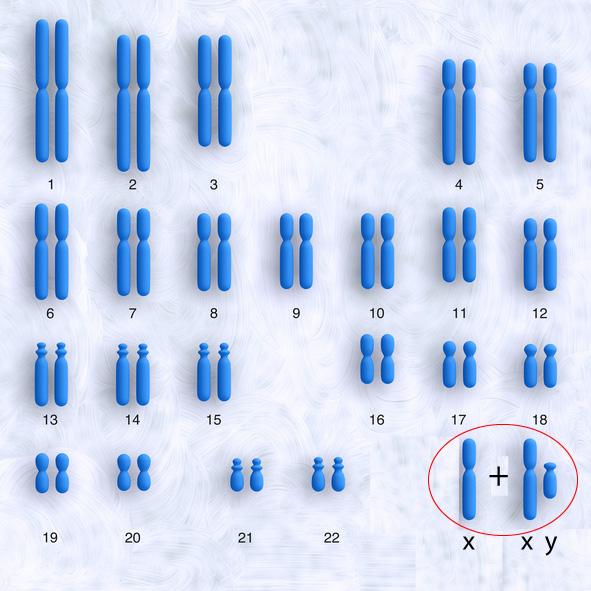 Klinefelters syndrom, 47XXY