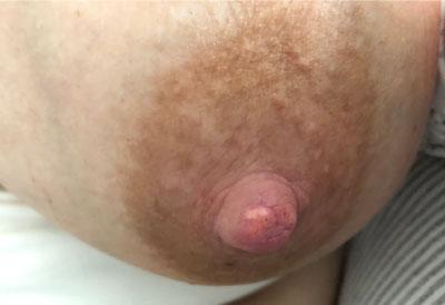 White Spot / hvid plet på brystvorten