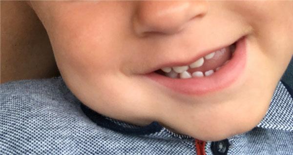 Se mine tænder - nu uden suttebid